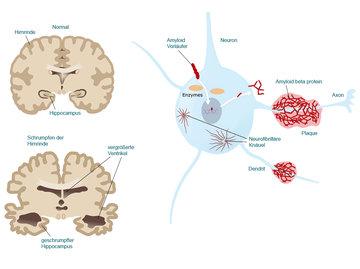 Neue klinische Studien im Kampf gegen Alzheimer