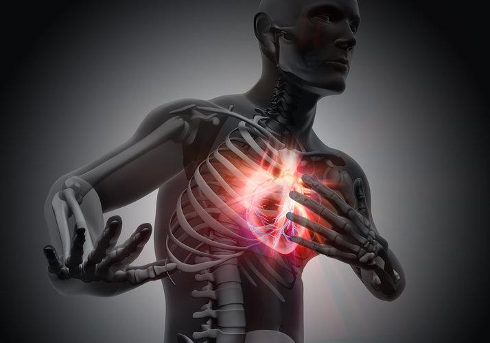 Herzinfarkt-Symptome bei Mann und Frau