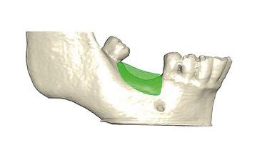 Knochenersatz für festen Halt der Implantate