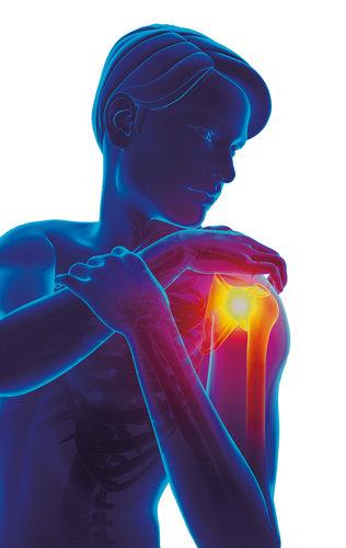 Die Schulter: Problemzone der Überkopfsportler