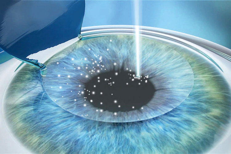 Laserkorrektur: Für die Freiheit des Sehens