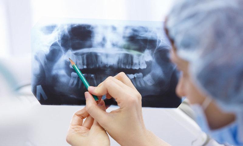 Oralchirurgie: Schonend dank moderner Technik
