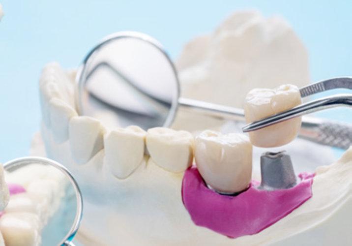 Funktion und Ästhetik für Ihre Zähne